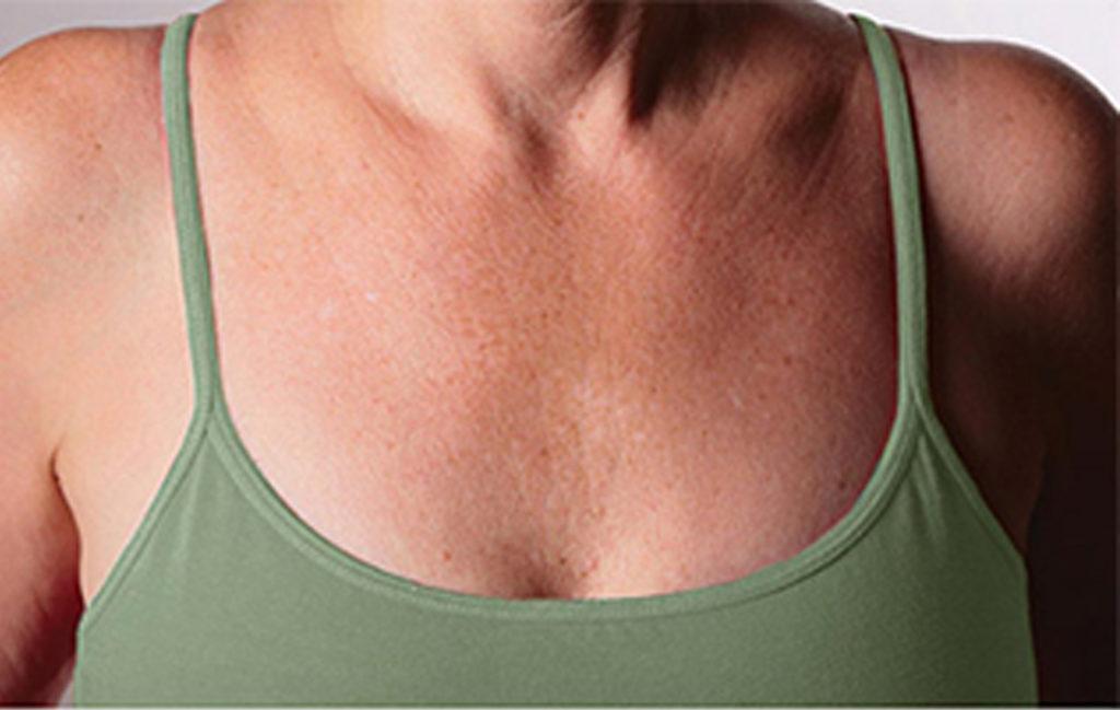 Eliminacion-arrugas-escote-vigo