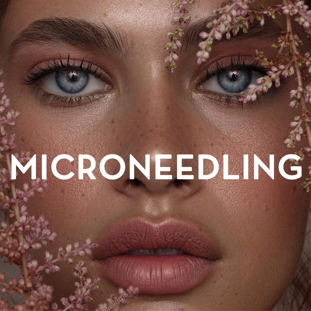 Microneedling Vigo