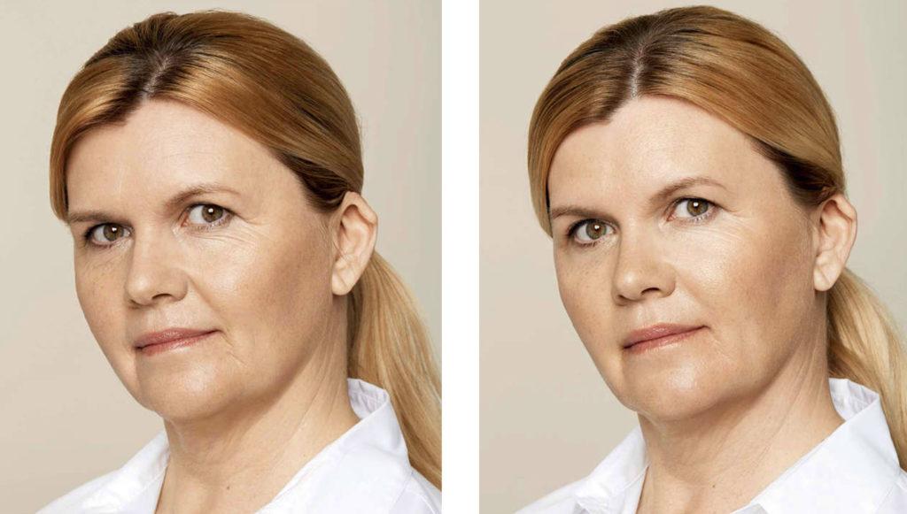 eliminacion-arrugas-rostro-vigo
