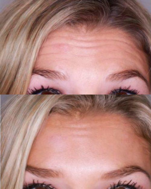 Arrugas Botox Vigo Clinica MIA