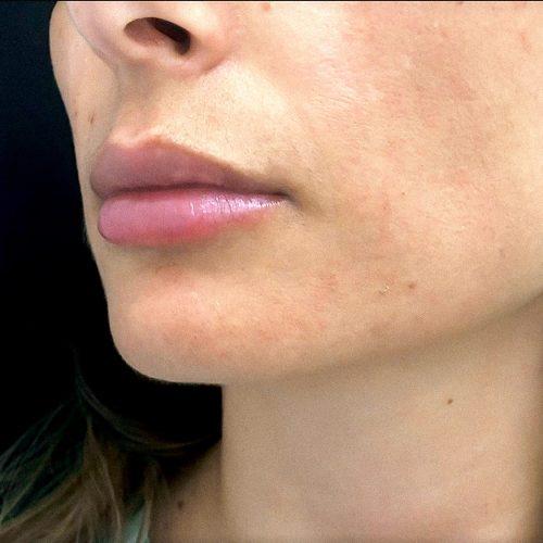 Labios Vigo Acido Hialuronico Clinica MIA
