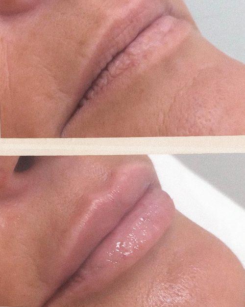 Labios Vigo Clinica MIA Acido Hialuronico