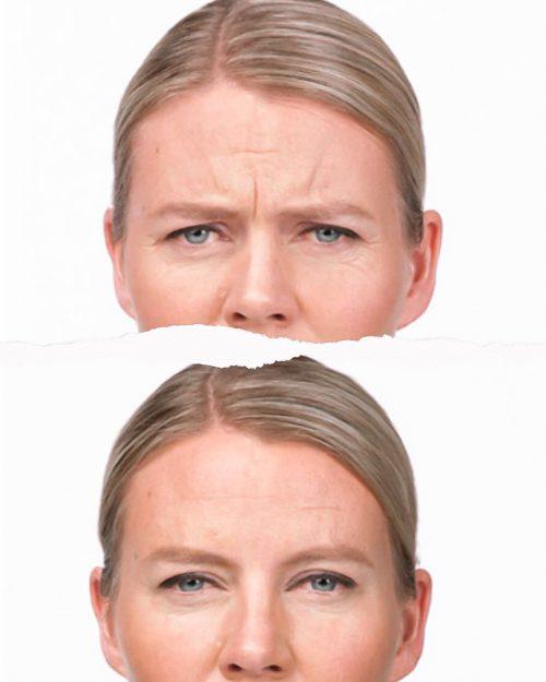 Clinica MIA Vigo Botox