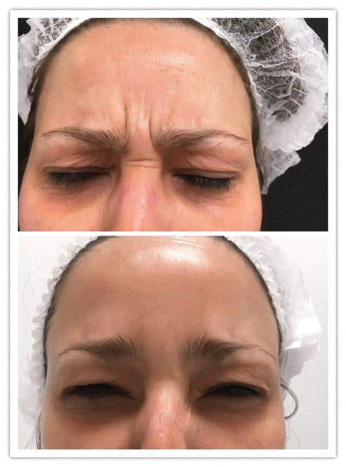 Botox Clinica MIA Vigo