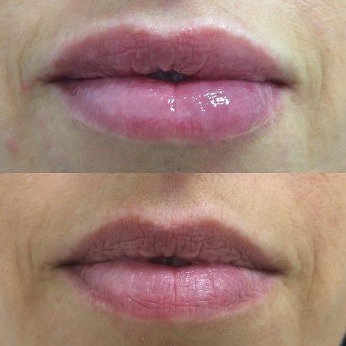 Labios Clinica MIA Vigo Acido Hialuronico