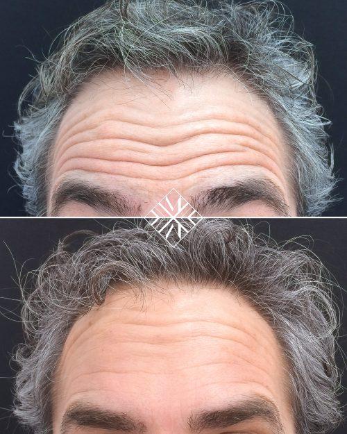 Vigo Botox Clinica MIA