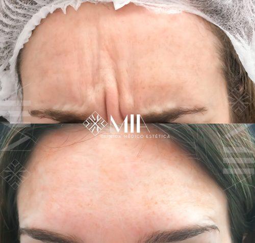 Arrugas Botox Clinica MIA Vigo