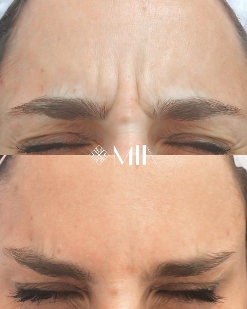 Vigo Clinica MIA Botox