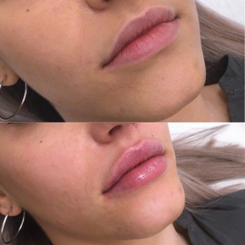 Acido Hialuronico Labios Vigo Clinica MIA