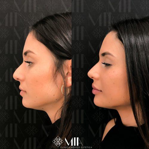 Full face Vigo Acido Hilauronico