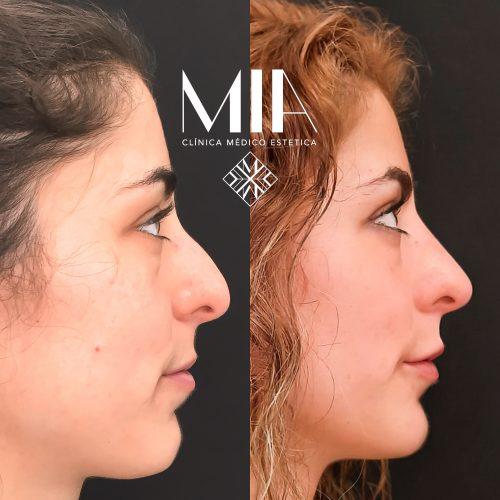 Vigo Full face Acido Hilauronico
