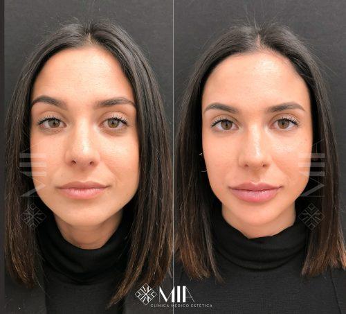 Full face Acido Hilauronico Vigo
