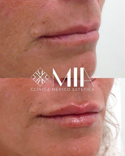 Vigo Acido Hialuronico Clinica MIA Labios