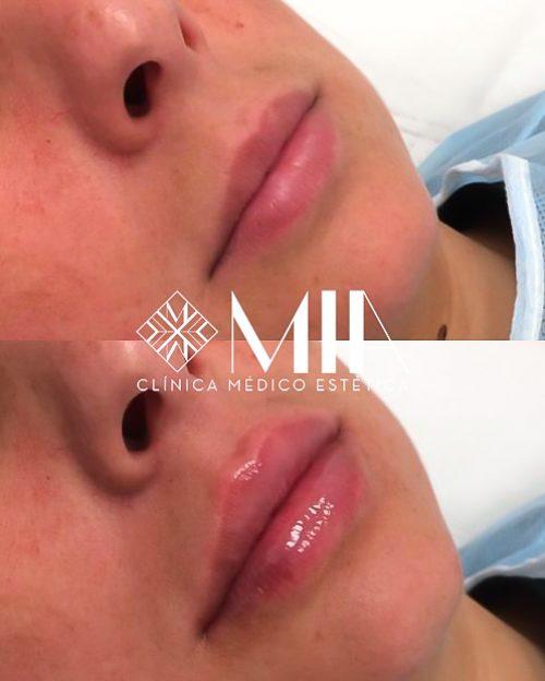 Vigo Labios Acido Hilauronico Clinica MIA
