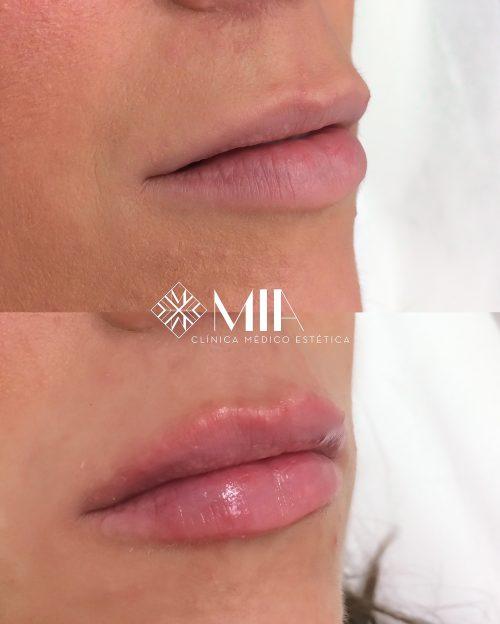 Clinica MIA Vigo Acido Hialuronico Labios