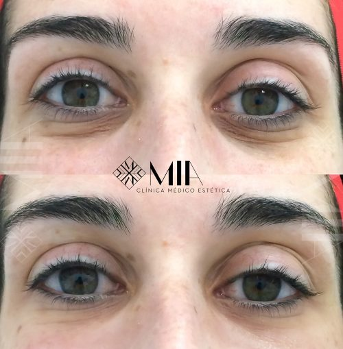 Eliminacion ojeras Acido Hialuronico Vigo Clinica MIA